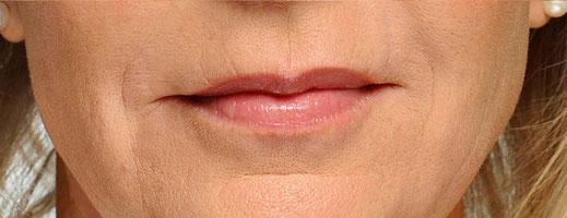 Lippenfältchen nachher- Anti Aging - Leipzig