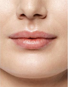 Lippenvergrößerung nachher - Dr. Salloum in Leipzig