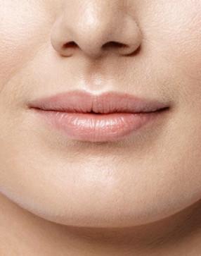 Lippenvergrößerung vorher - Dr. Salloum in Leipzig